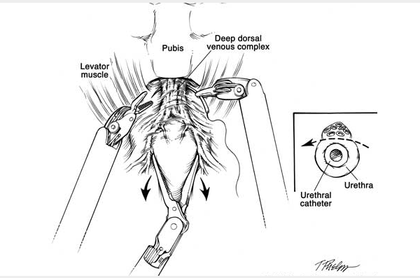 Robotic Nerve-sparing Radical Prostatectomy » Department of