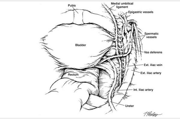 Robotic Nerve-sparing Radical Prostatectomy » Department of