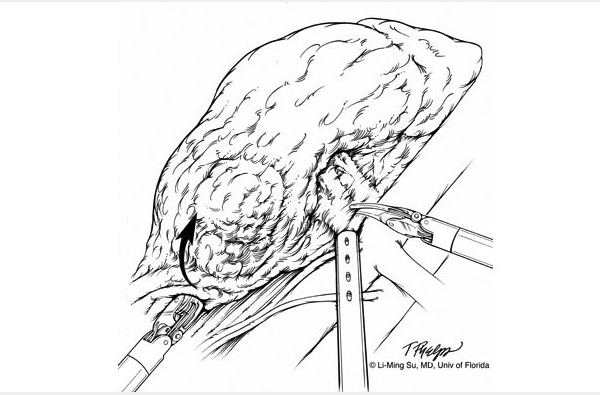 Black and white illustration depicting surgeon's left instrument providing anterior traction of lower pole to assist with dissection of renal hilum