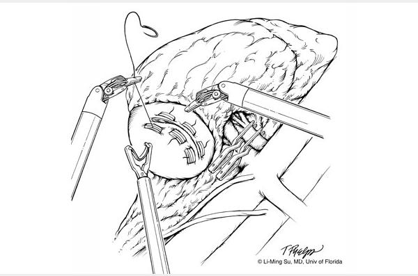 Laparoscopic and Robotic Partial Nephrectomy » Department of