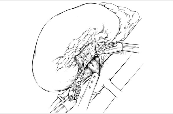 Black and white illustration of dissection of the renal hilum. The renal hilum is carefully dissected by creating small windows within the perihilar tissues parallel to the direction of the renal vessels. These perihilar tissues can be divided using hook electrocautery.