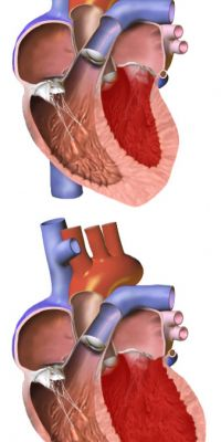 In this graphic, the heart on the bottom has an enlarged ventricle. A normal heart is seen above.