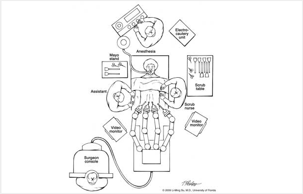 black and white schematic drawing of the operating room. at the top of the picture you have the anesthesiologist . to his right you have the electrocautery unit, the scrub table with tools, the video monitor. a scrub nurse is standing to the left of the patient. as you follow around the operating room table, you see the mechanical arms of the robotic machine. the surgeon console and video monitor are to the patients right, as well as the assistant to the surgeon. the mayo stand (A removable instrument tray set on a movable stand that is positioned over or adjacent to a surgical site; it provides a place for sterile instruments and supplies used during surgery).