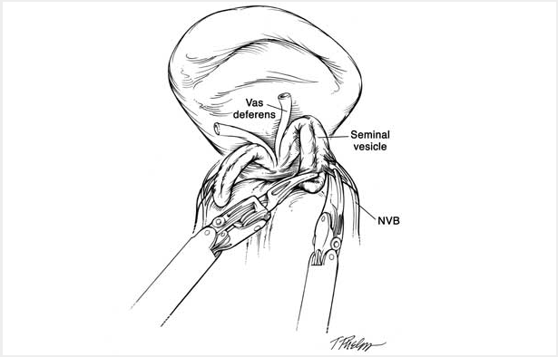 Black and white schematic drawing showing the vas deferens, seminal vesticle, neurovascular bundle. 2 of the mechanical arms are holding the seminal vescal and the neurovascular bundle.