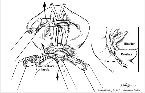 Robotic Nerve Sparing Radical Prostatectomy Department Of