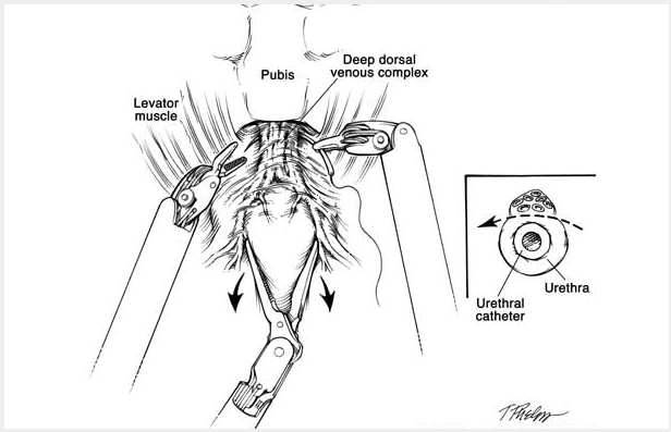 black and white schematic drawing showing the pubis, deep dorsal venous complex and levator muscle. the mechanical arms of the robotic machine are near the pubis. there is a smaller insert picture showing the urethra and the urethral catheter.
