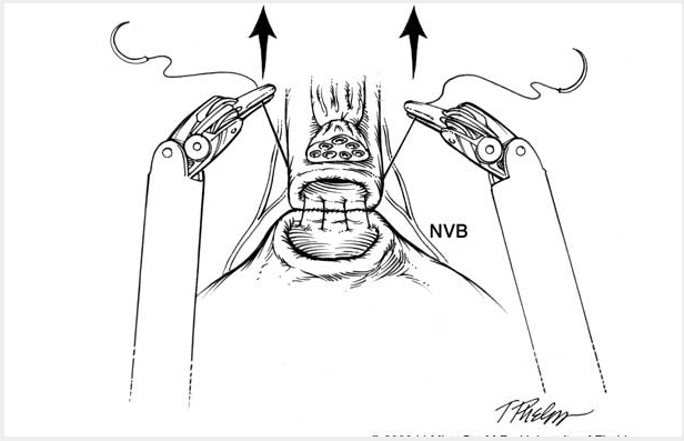 black and white schematic drawing showing Running continuous sutures reapproximating the posterior bladder to the urethra near the neurovascular bundle (NVB).