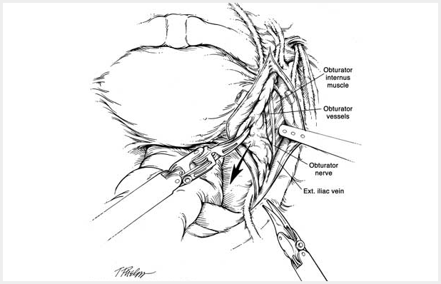 black and white schematic drawing of obturator internus muscle, obturator vessels, obturator nerve and the ext. illac vein. working near the ext illac vein and obturator nerve are the mechanical arms of the robotic machine.